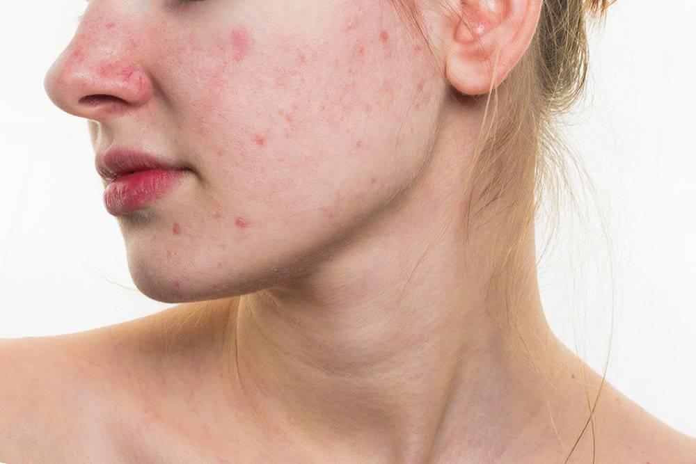 Как избавиться от угрей на лице?