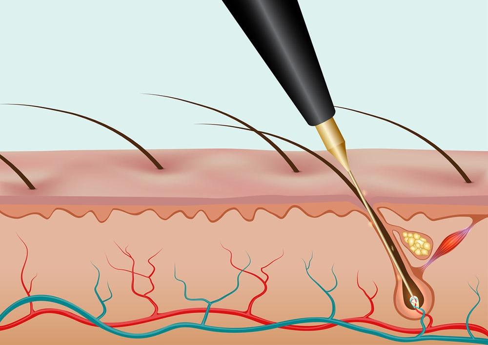 Удаление волос электролизом - подходит ли вам это?